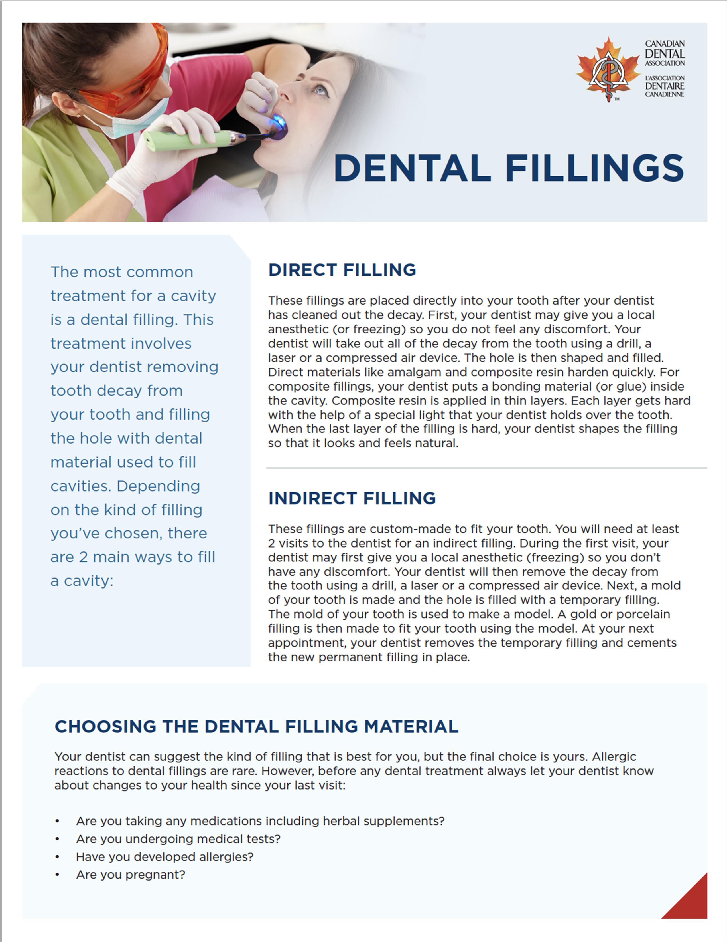 hockley dentistry - dental fillings thumbnail