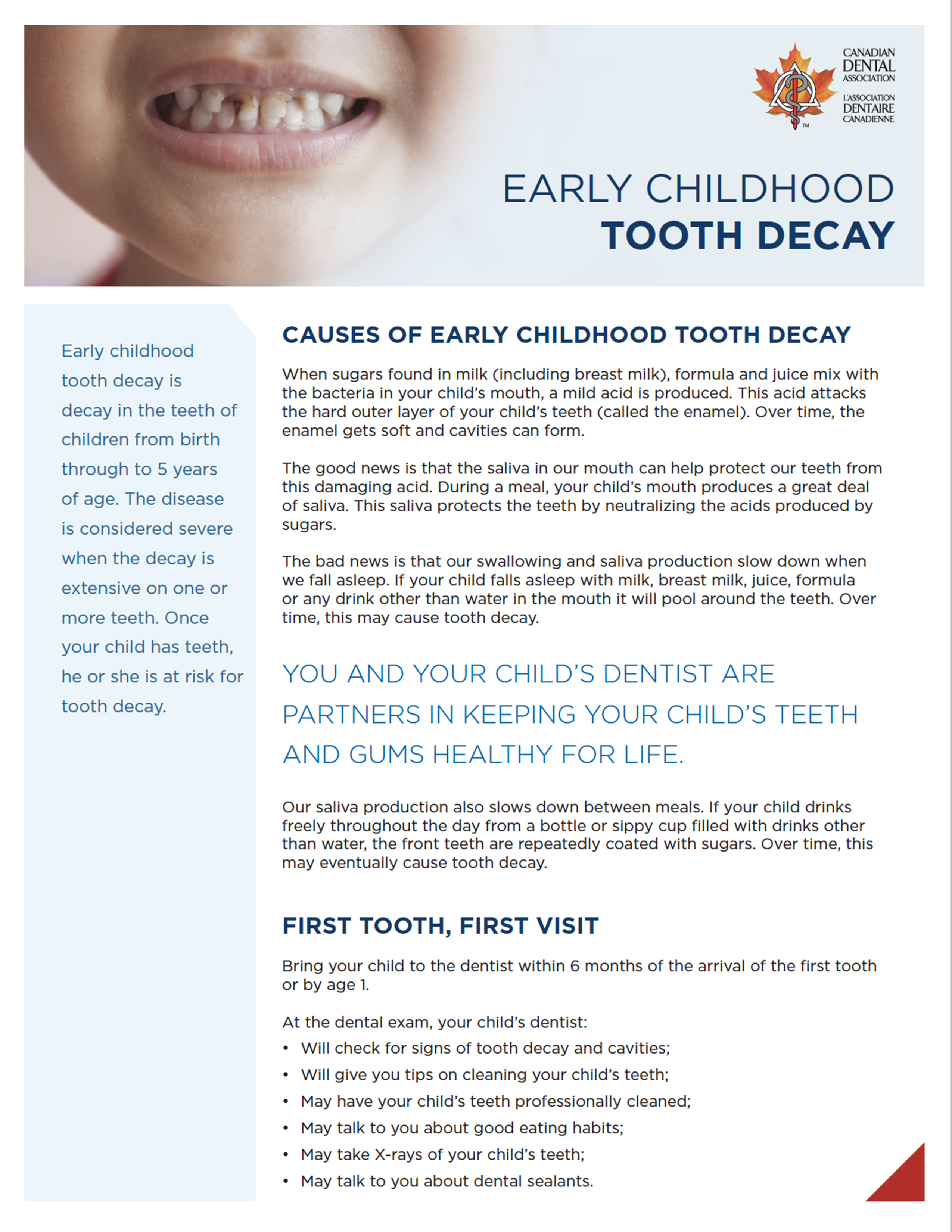 hockley dentistry - early childhood tooth decay thumbnail