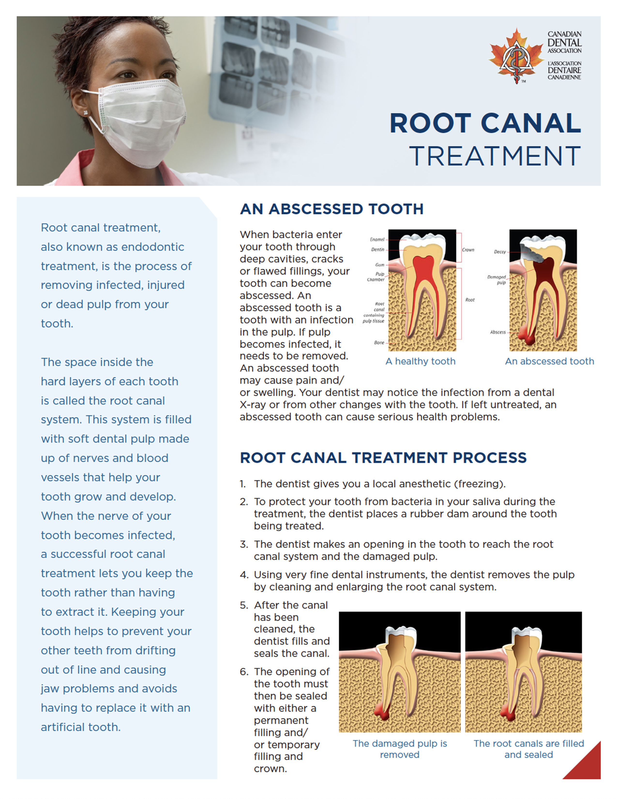 hockley dentistry - root canal thumbnail